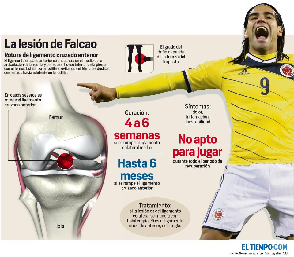 La lesión de Falcao