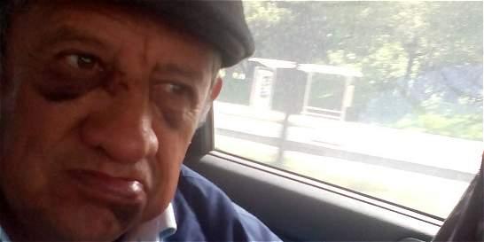 Intolerancia: rompen el tabique a anciano en tumulto en TransMilenio