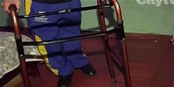 El albañil que construyó con ollas sus prótesis para la rodilla - ElTiempo.com