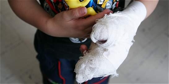 Menor de 3 años resultó quemado con pólvora en Barranquilla