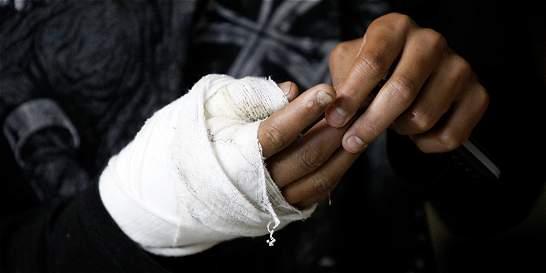 Un menor de 12 años y un adulto, lesionados con pólvora en Cali
