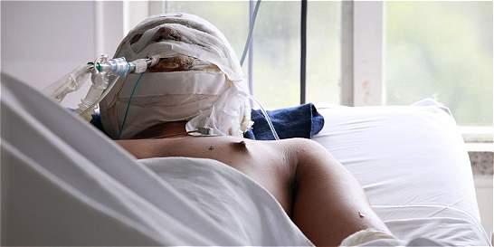 Ya son 17 los adultos y niños lesionados con pólvora en el Valle