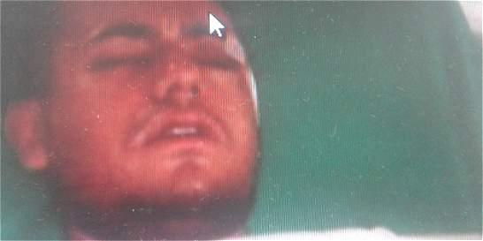 Vallecaucano, en estado crítico tras ser herido en riña entre hinchas