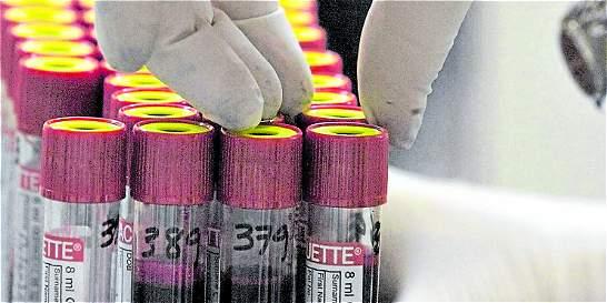 Van más de 1.000 casos de VIH diagnosticados este año