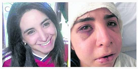 Investigan brutal golpiza a hija de magistrado tras juego de Colombia