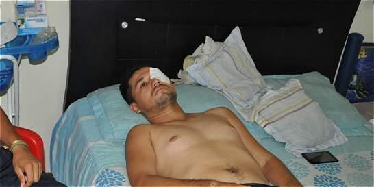 Hincha con discapacidad perdió un ojo tras ser atacado con arma blanca
