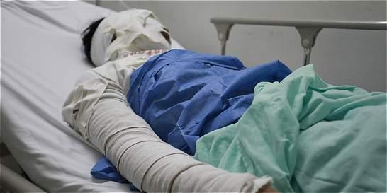 Madre relata el drama de su hija de 15 años quemada con ácido en Neiva