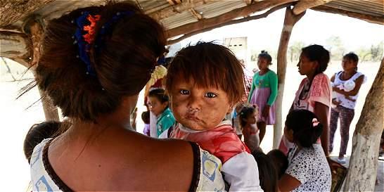 Manaure, en la mira por desnutrición