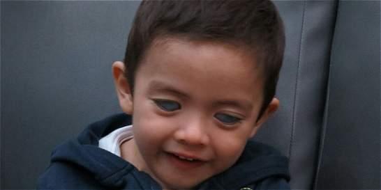 Por falta de tratamiento médico niño está a punto de quedar ciego