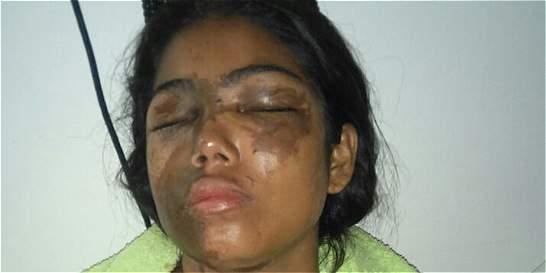 Joven fue atacada con ácido en el sur de Bolívar