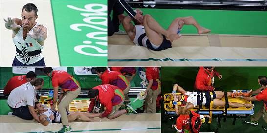 Fotos: la terrible fractura de un gimnasta francés en los Olímpicos