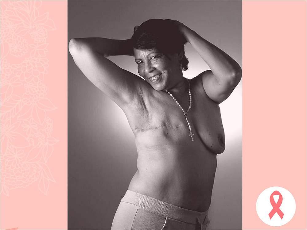 ELOISA OROZCO. Estas fotos demuestran un acto de valentía, su fortaleza para enfrentar la enfermedad y las ganas de vivir.