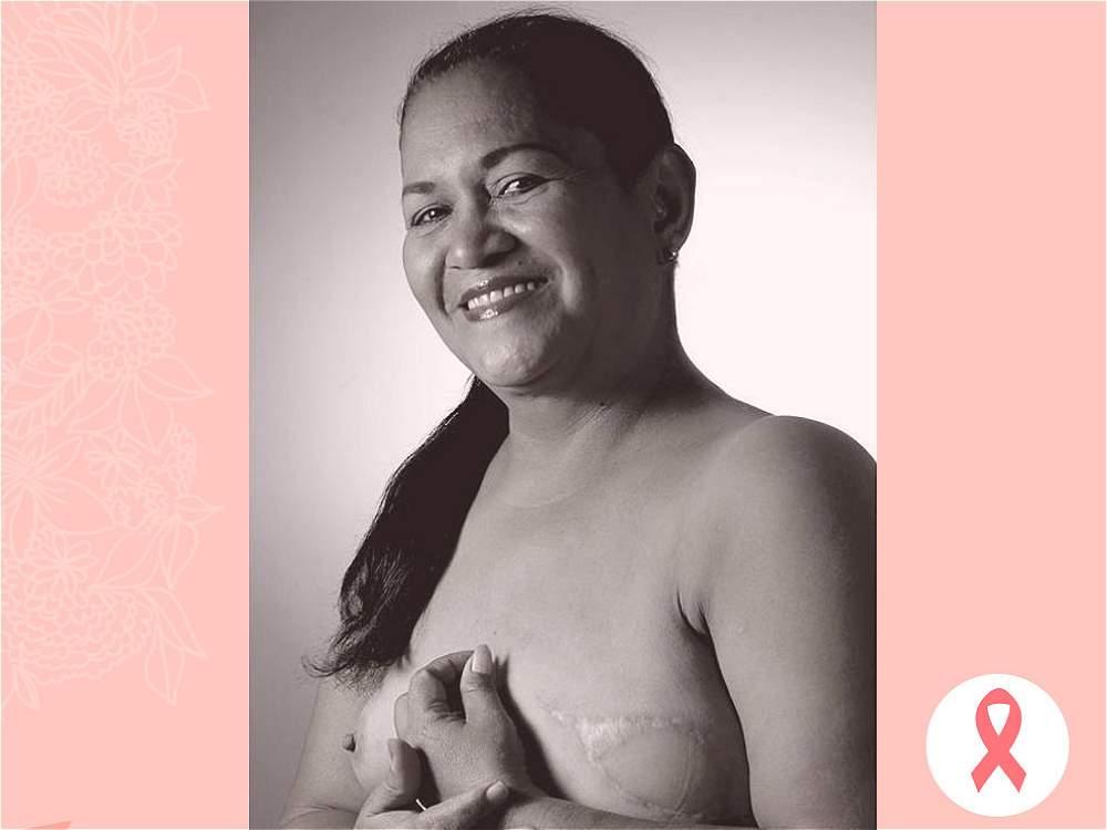 LUZ ENEIDA MALAGÓN. El factor hereditario es preponderante en el origen del cáncer de seno.