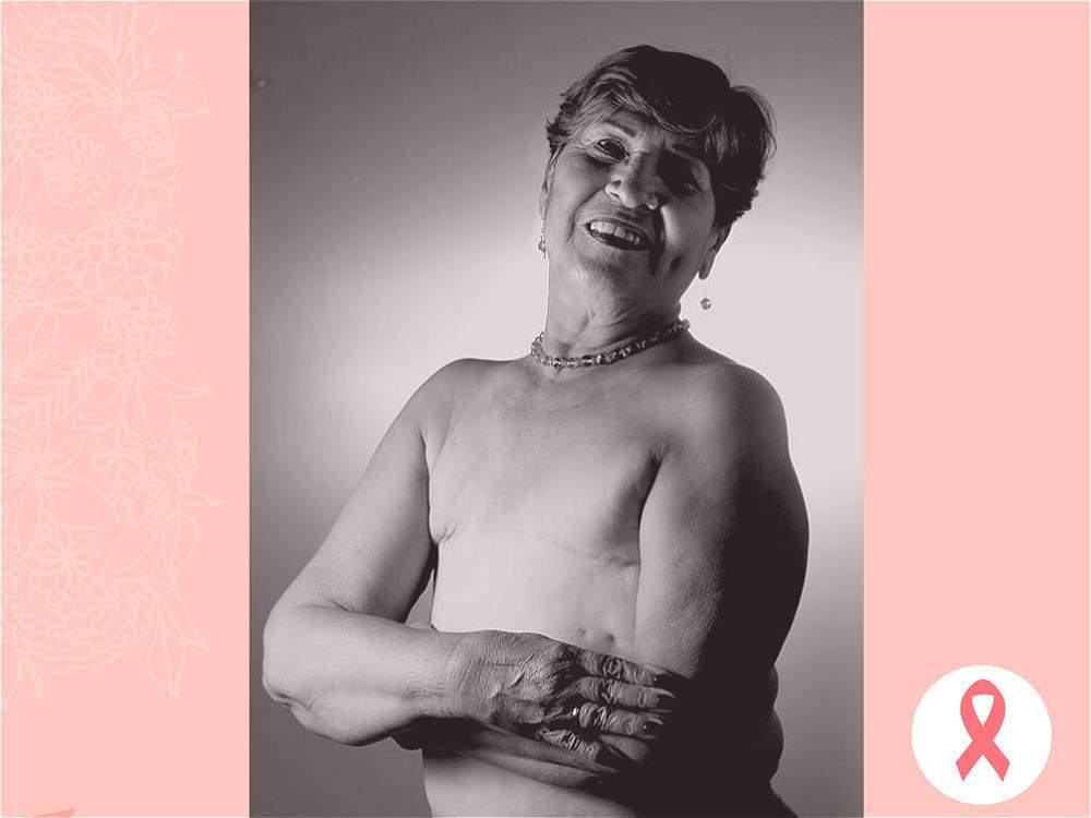 HERIBERTA DÍAZ. Especialistas aseguran que los senos tienen un fuerte influjo hormonal, lo que los hace más propensos al cáncer.