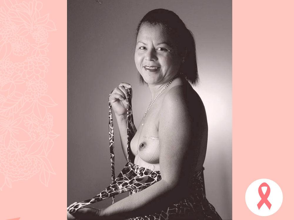 MARELIS MACHADO. El cáncer de mama, según estudios, es el más frecuente en Atlántico, Bolívar, Arauca, Antioquia y Valle del Cauca.