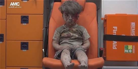 Niños sirios, víctimas que más duelen