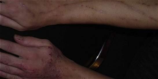 De analgésico a devastador de la piel: una mirada al 'krokodil'