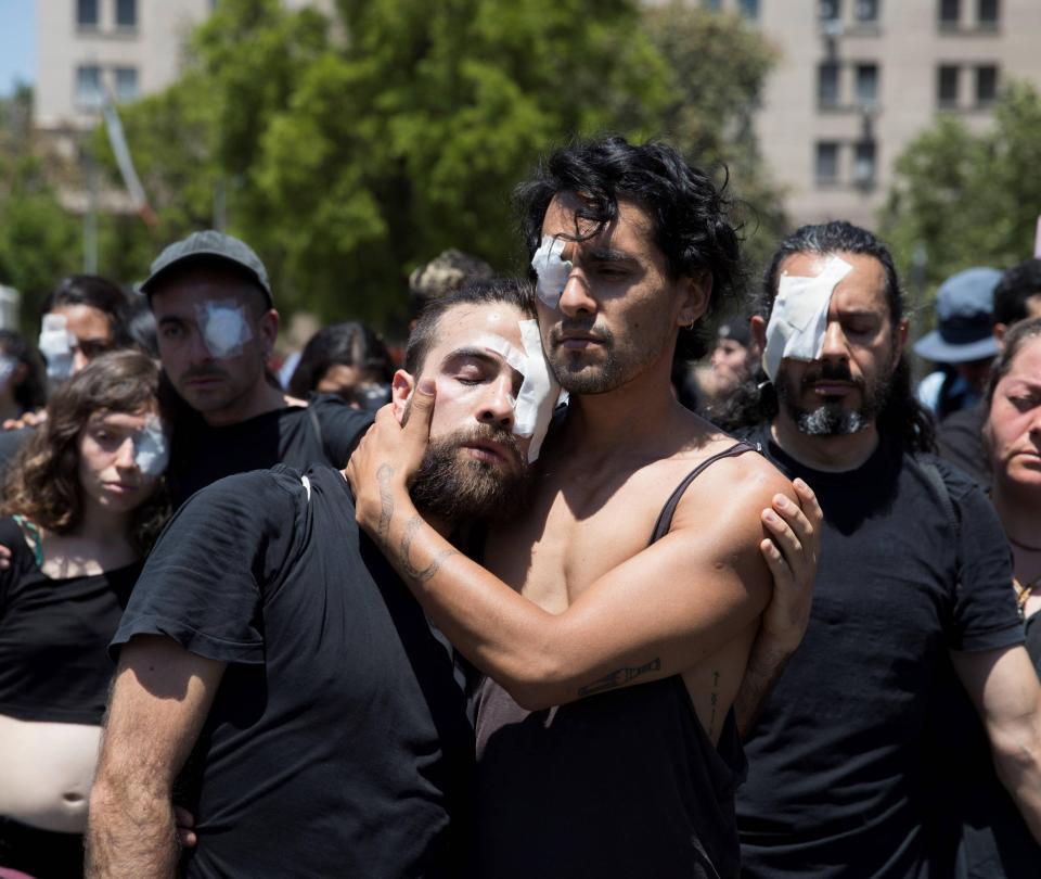 Aumentan a 350 el número de chilenos heridos en la cara por perdigones