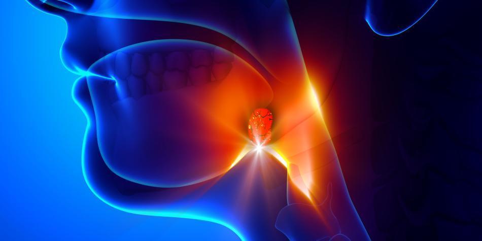 como identificar la gonorrea en el hombre