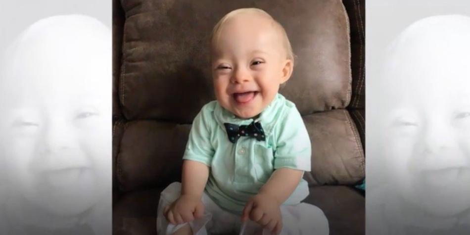 como saber si tu bebe sufre de sindrome de down
