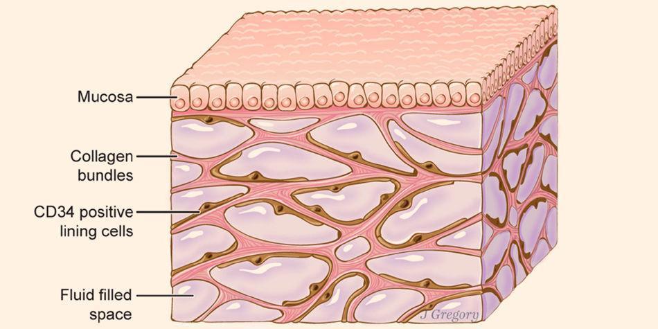 Qué es el intersticio, el nuevo órgano humano descubierto - Ciencia ...