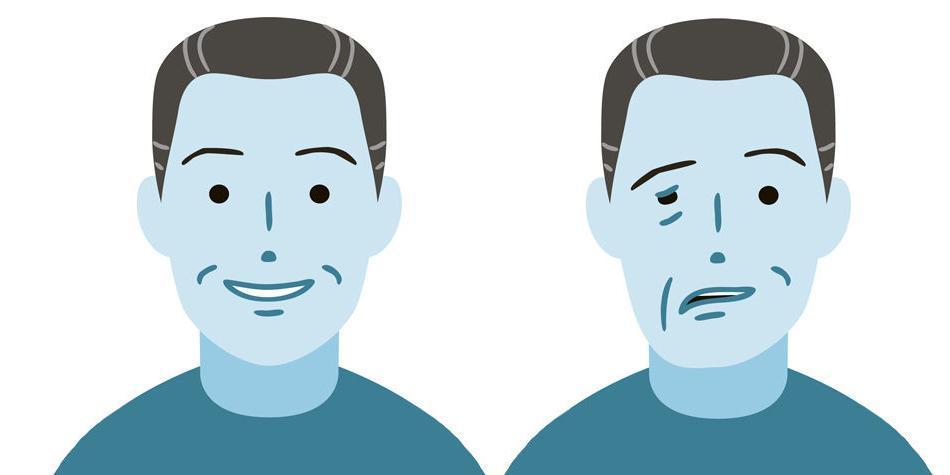 Dolor detras de la oreja paralisis facial