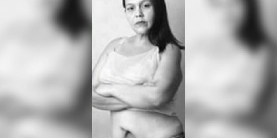 La tragedia de una mujer víctima de un mal procedimiento estético