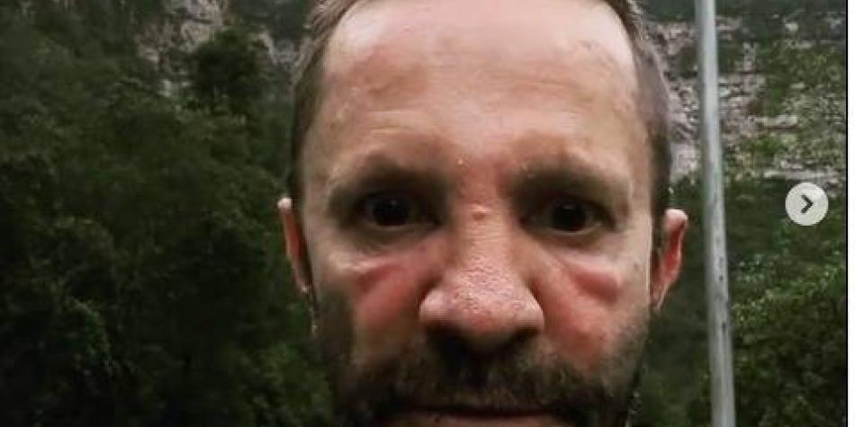 Al famoso Pirry lo picaron las abejas y la cara le quedo 'de terror'