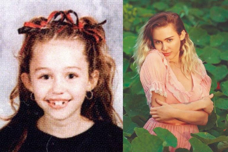 Drogadictos adolescentes antes y despues de adelgazar