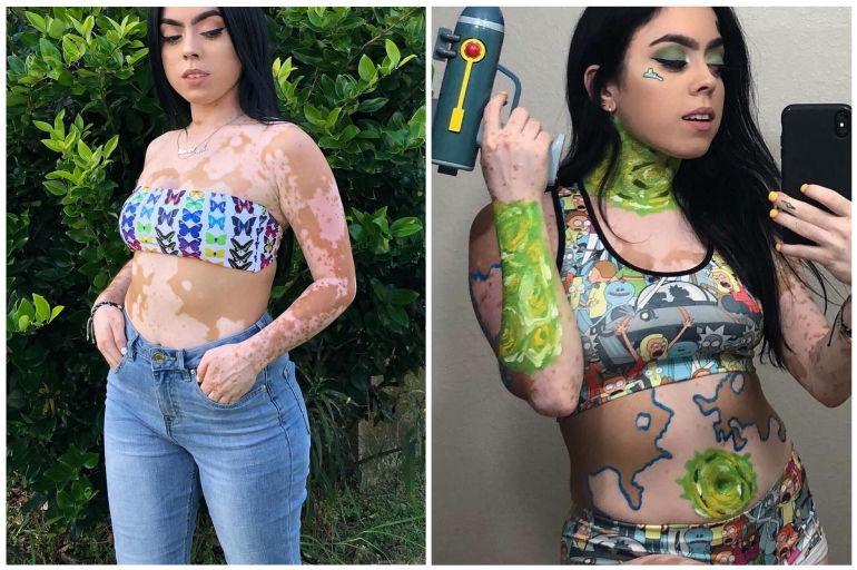 La modelo con vitiligo que hace arte con su cuerpo ...