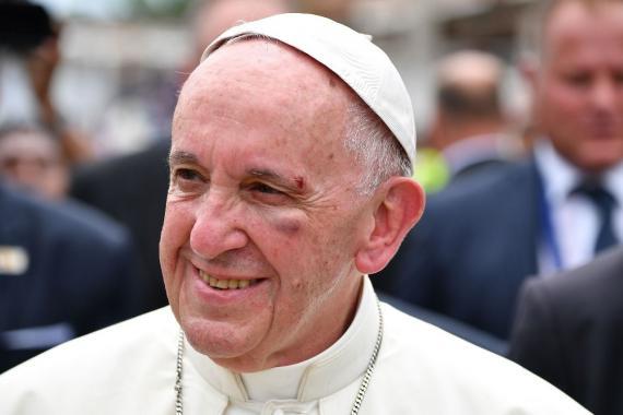 El papa Francisco se golpea