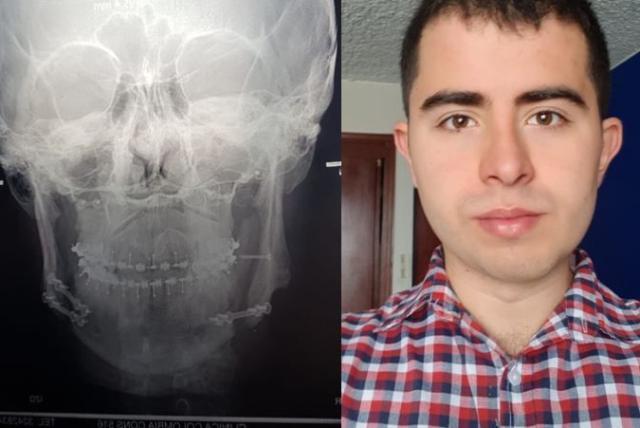 Dieta blanda despues de cirugia maxilofacial
