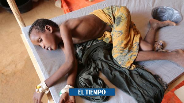 El hambre, la catástrofe más mortal y evitable de la humanidad