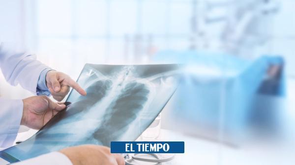 La epoc es la tercera causa de muerte en Colombia - ElTiempo.com