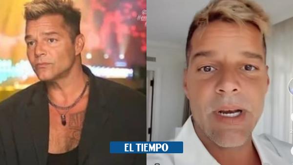 'Me inflamé': Ricky Martin explicó lo que sucedió con su rostro