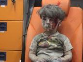 La transformación del niño símbolo de la guerra en Siria