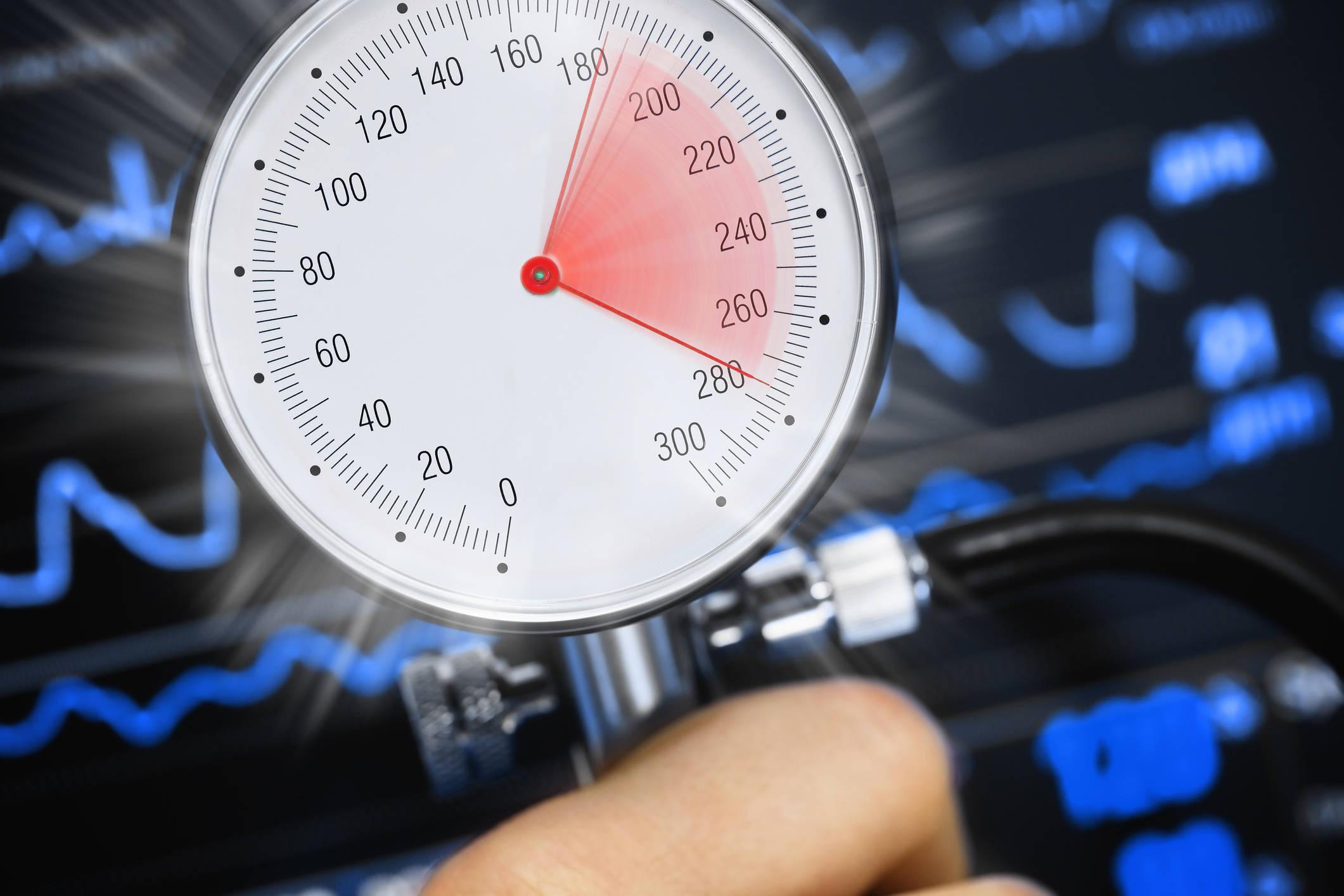 Signo de picos de presión arterial